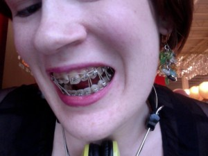 Seven rubber bands threaded through my braces lovingly.